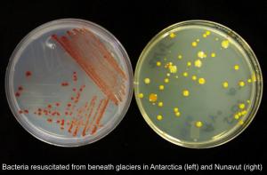 20140414_bacteria